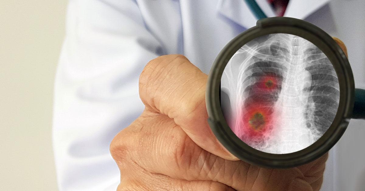 Chrípka zabíja v Nemecku tisíce ľudí ročne